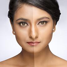 Mesoestetic Facial Peel