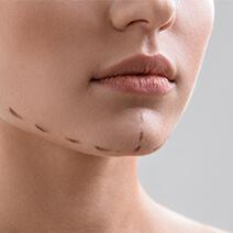 Cheek  & Chin Augmentation