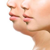 Orthognathic Surgery (Jaw Corrective Surgery)