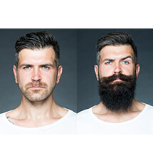 Moustache/Beard Transplantation