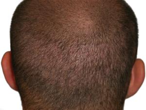 FUE Hair Transplant in Ahmedabad